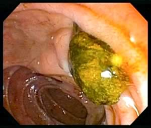 Endoscopic image of a bile duct stone