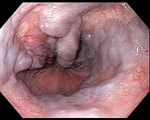 Endoscopic view of varicose veins in the esophagus.