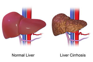 Illustration of a normal liver next to a liver with cirrhosis.