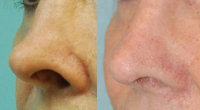 Functional Nasal Surgery | MUSC Health | Charleston SC