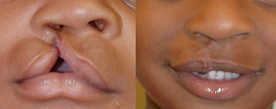 Before and after cleft lip repair 3