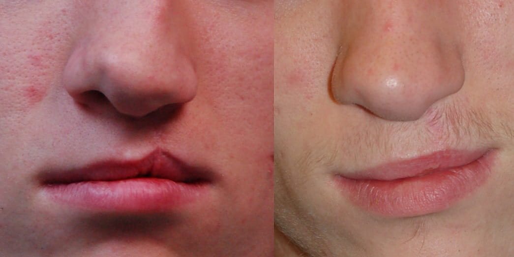 Before and after cleft lip revision surgery