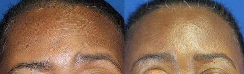 Before and after endoscopic brow lift