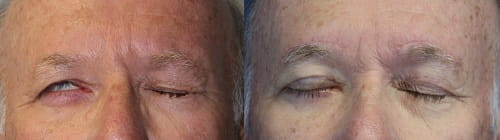 Before and after eyelid weight