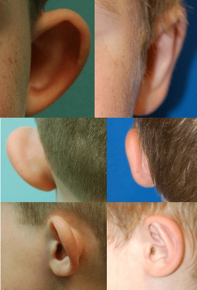 Before and after left ear otoplasty