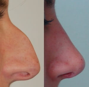 Before and after rhinoplasty 1