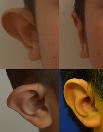 Before and after right ear otoplasty
