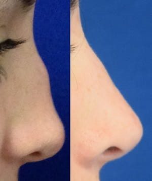 Before and after septorhinoplasty 2