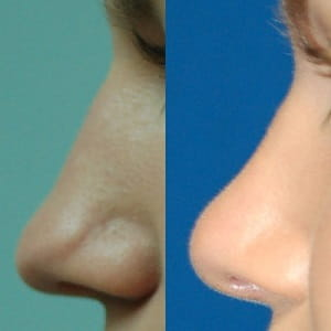 Before and after tip rhinoplasty 1
