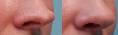 Before and after tip rhinoplasty 2