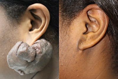 Scar Revision & Keloid Treatment | MUSC Health | Charleston SC
