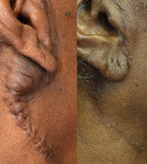 Keloid before and after surgical removal 2