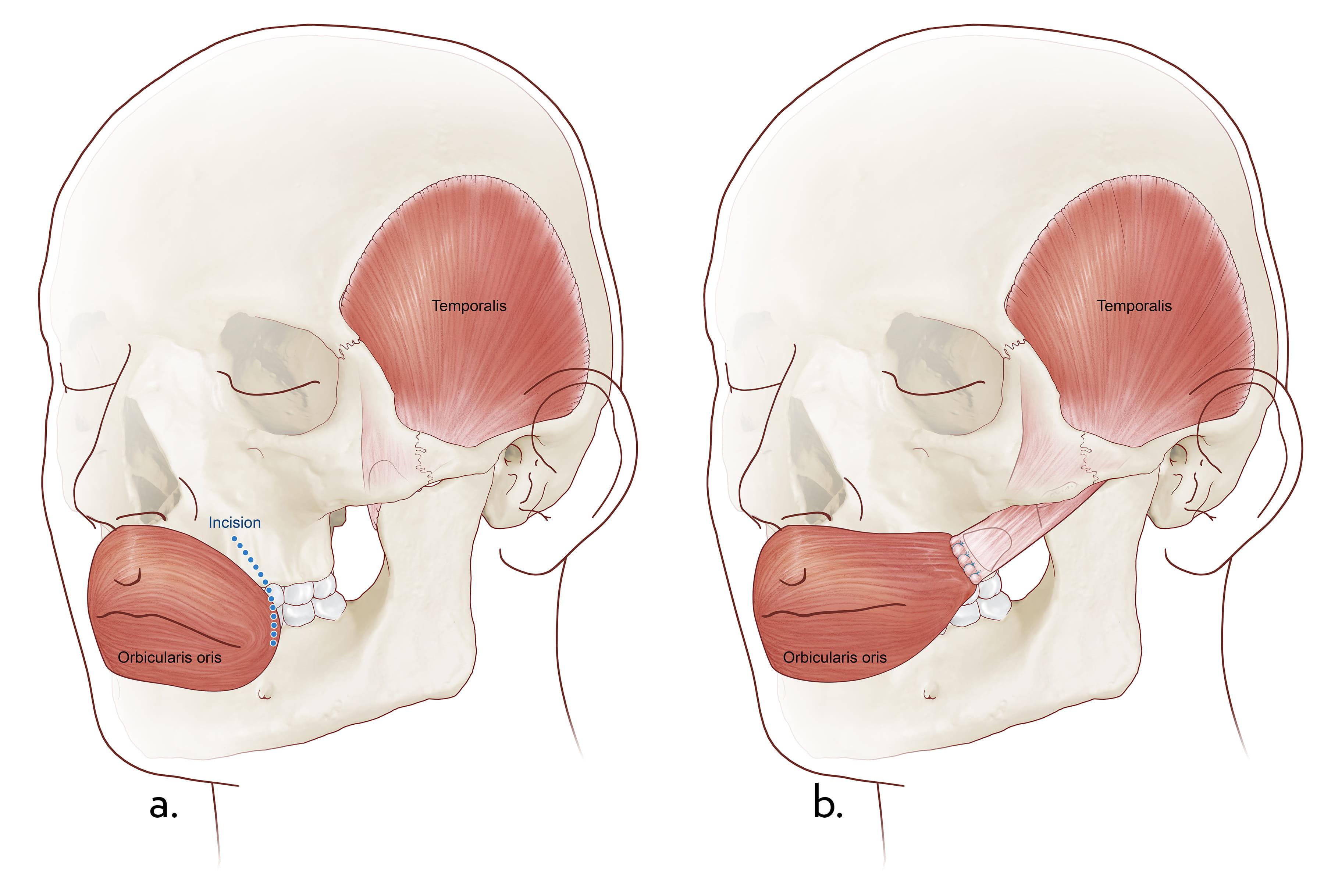 Facial Paralysis | MUSC Health | Charleston SC
