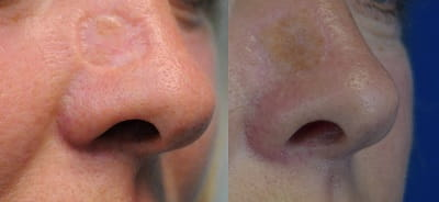 Before and after repair of nasal defect by skin graft