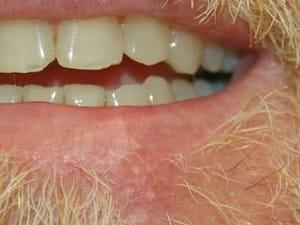 Facial Skin Cancer Reconstruction | MUSC Health | Charleston SC