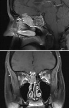 An esthesioneuroblastoma extending into the brain of a patient.