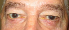 Lower eyelids have been lengthened with surgery