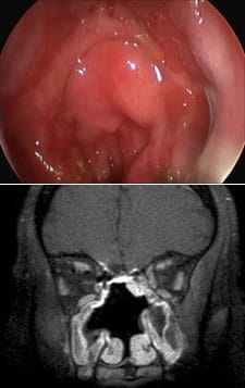 Endoscopic view and MRI after complete resection of esthesioneuroblastoma.
