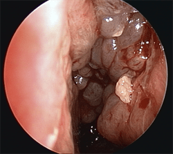 Polyps blocking left nasal cavity
