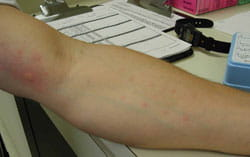 Red and swollen upper arm typical with positive allergy test.