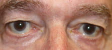 Shortened lower eyelids before surgery