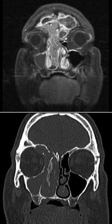 MRI and CT of an inverted papilloma that eroded into the eye and brain was removed endoscopically