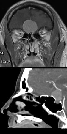 CT and MRIs demonstrating various meningiomas that have been removed endoscopically.