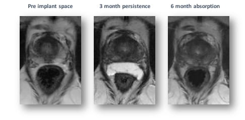 A series of three MRI images showing pre-implant space, three month persistence, and six month absorption of hydrogel.