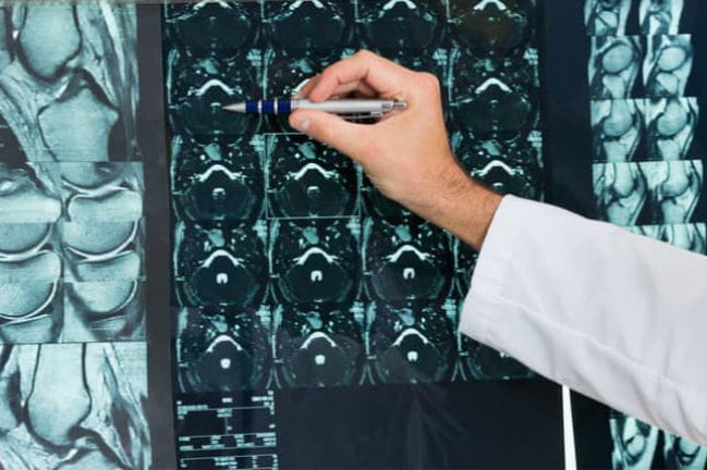 Radiologist examining patient x-ray.
