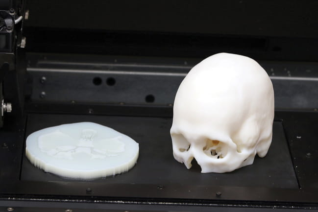 3D Printed Patient Specific Models of the Skull