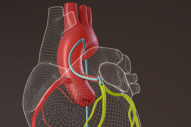 An artist's rendering of the heart showing the delivery of the cardiosphere-derived cells through the aorta and into the coronary arteries.