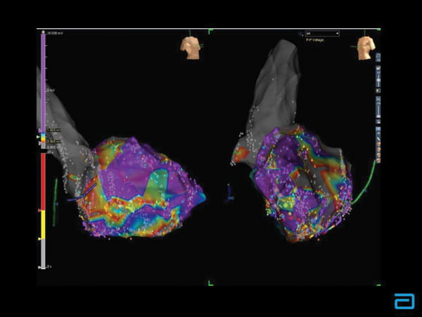 Two Views of a Heart Affected by Cardiac Sarcoidosis