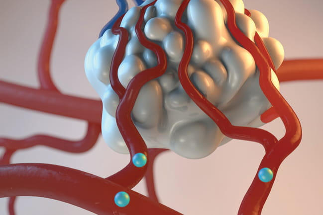 Banner image of artist's depiction of radioactive microspheres being delivered to a tumor through its arterial supply.
