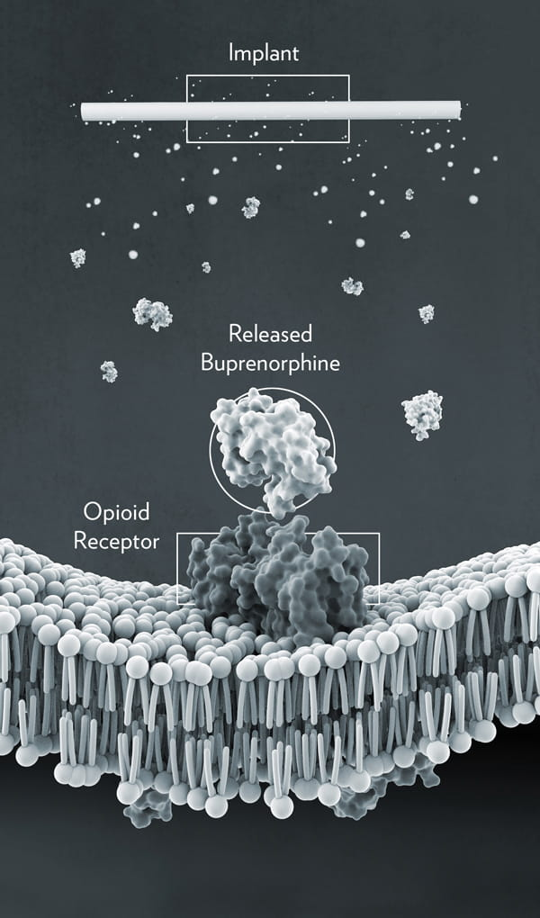 Medical illustration of opioid receptor and Implant