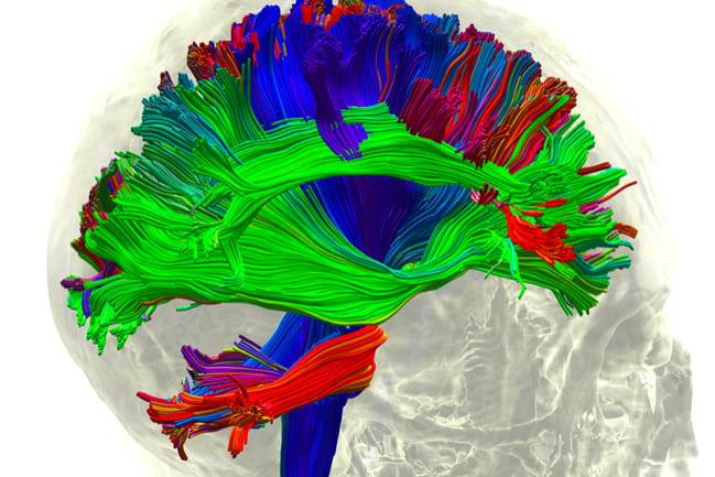 White matter fiber architecture of the brain