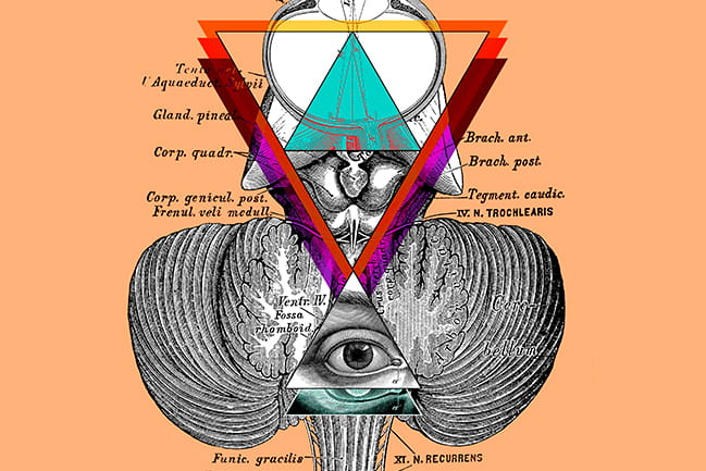 Infographic for the Pineal Cysts Worth a Second Look Progressnotes Article