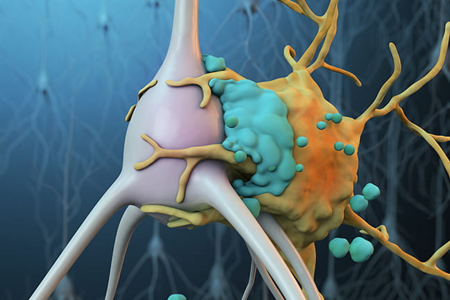A microglial cell (yellow) attached to an ischemic neuron (gray) that has been tagged by complement proteins (blue)