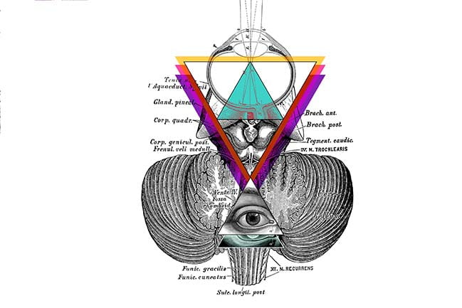 Pineal Cyst Illustration
