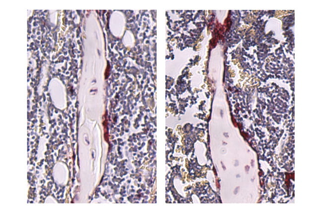Stained tibiae from germ-free (left) and SFB-mono- associated (right) mice.